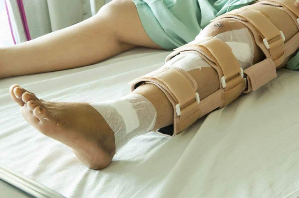 Fractures And Broken Bones